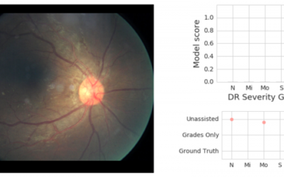 Update: Deep-Learning for Detecting Diabetic Retinopathy #Google #Diabetes #Ophthalmology #HealthcareAI #MachineLearning #DeepLearning #ComputerVision @googleAI